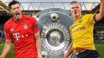 BVB - FC Bayern: Luxusprobleme überall